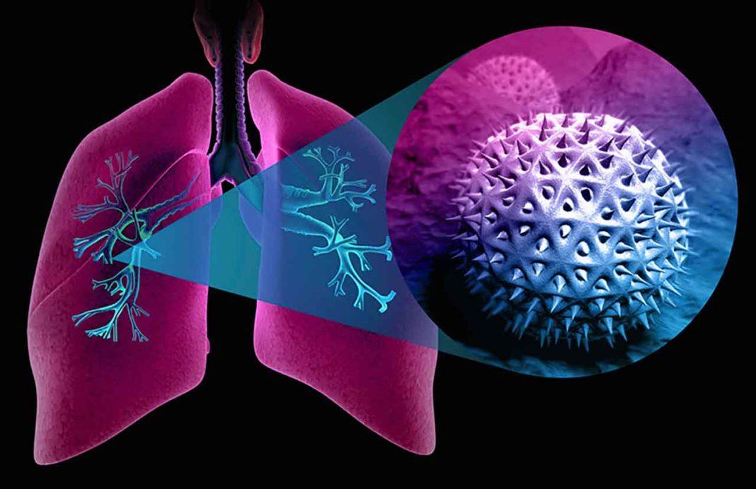 Астма: ученые и врачи исследуют новые методы лечения