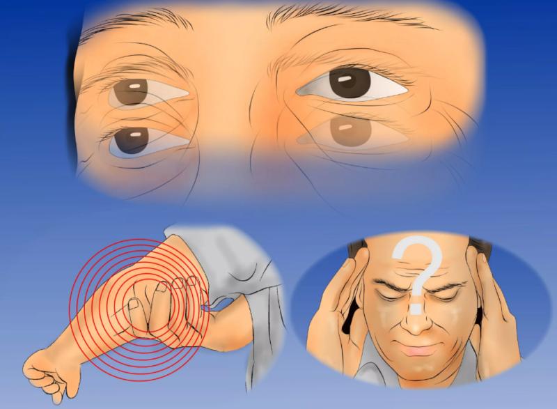 Рассеянный склероз: спорт и тренировка как эффективные меры терапии